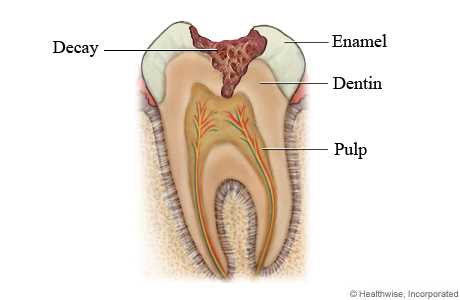 Top Ways To Treat Tooth Decay Your Dental Health Resource
