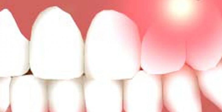 Laser-Dentistry-1