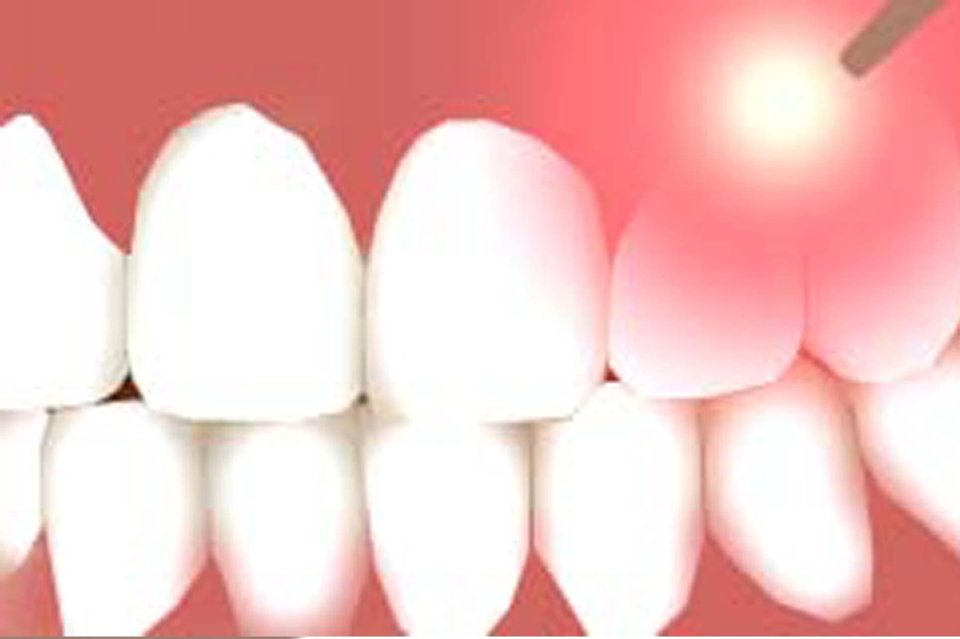 Laser Dentistry for Revolutionary Results