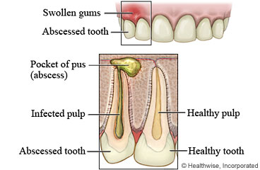 Tooth Abscesses vs. Tooth Infections—What's the Difference?