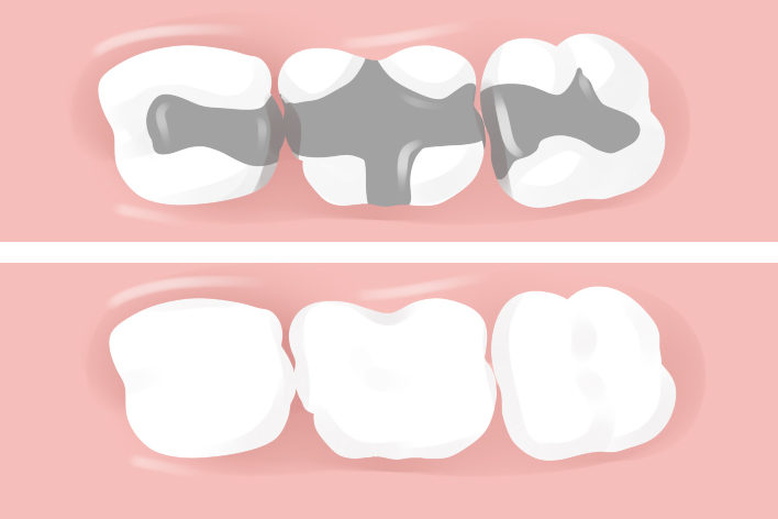 The Best Ways To Take Care Of Your New Filling Dental Fillings