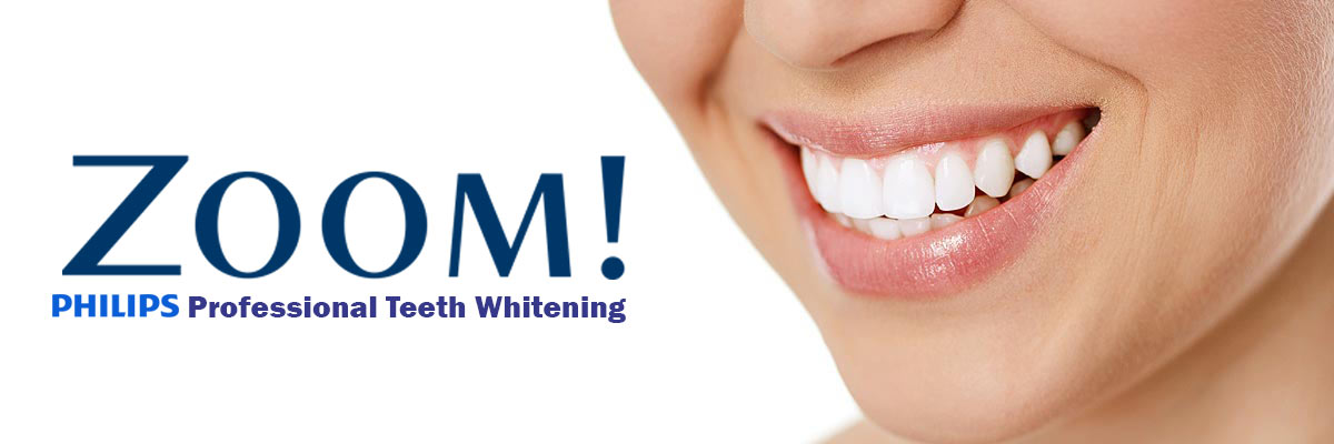 What to Expect with Zoom! Professional Teeth Whitening