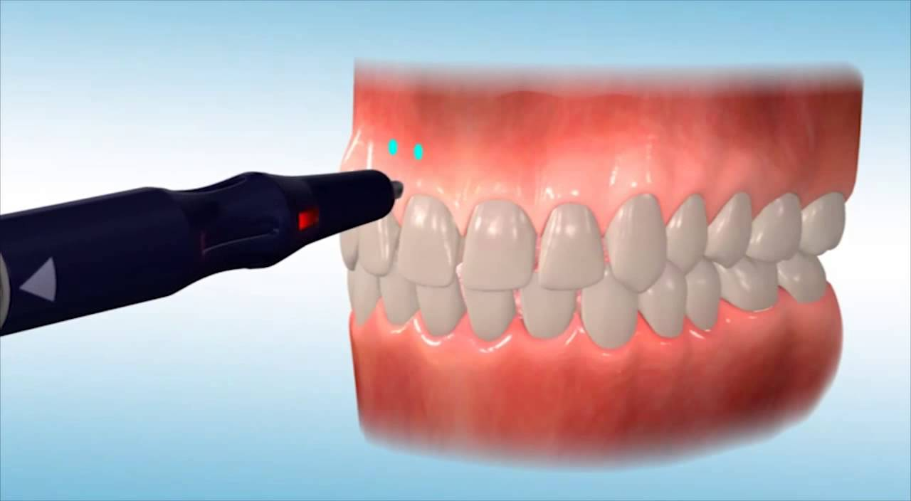 Accelerate Your Orthodontic Treatment with Propel