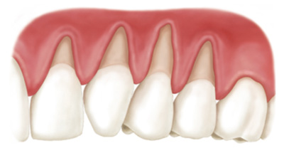 Identifying Signs of Gum Recession