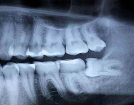 wisdom-teeth-xray