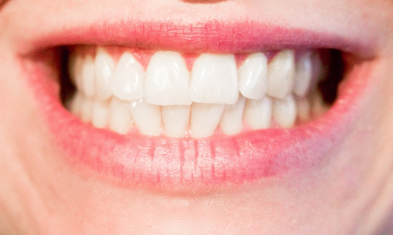 top signs you may have weak enamel your dental health resource