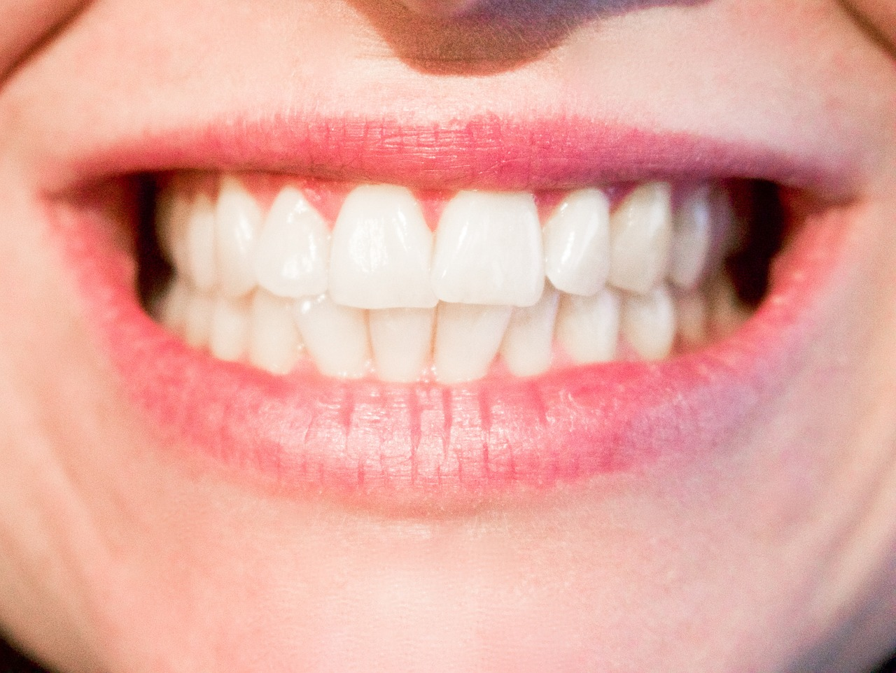 Top Signs You May Have Weak Enamel