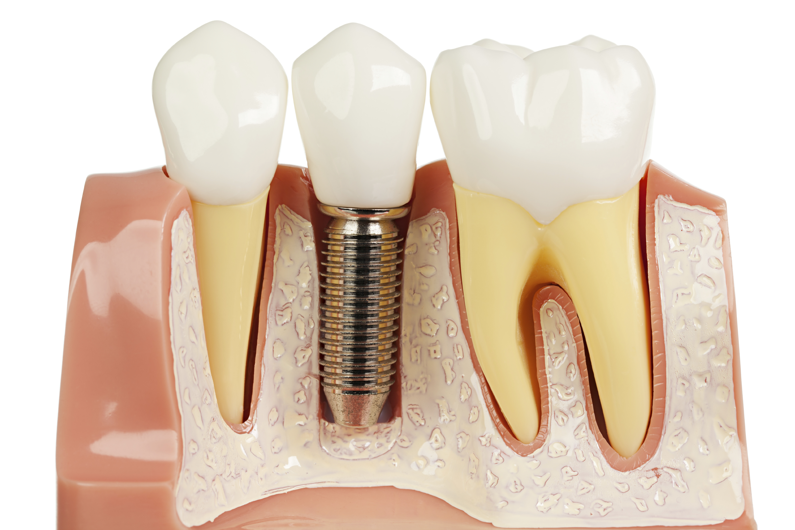 Are All Dental Implants Created Equal?
