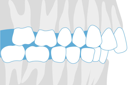 Malocclusions of the Teeth: What Causes a Misaligned Bite?