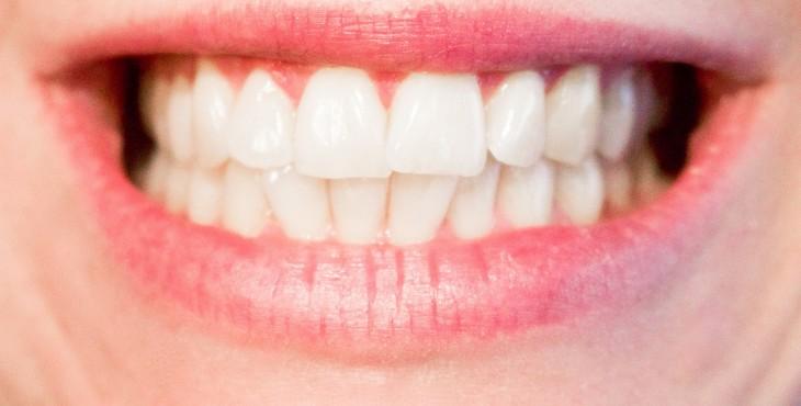 teeth-1652976_1280