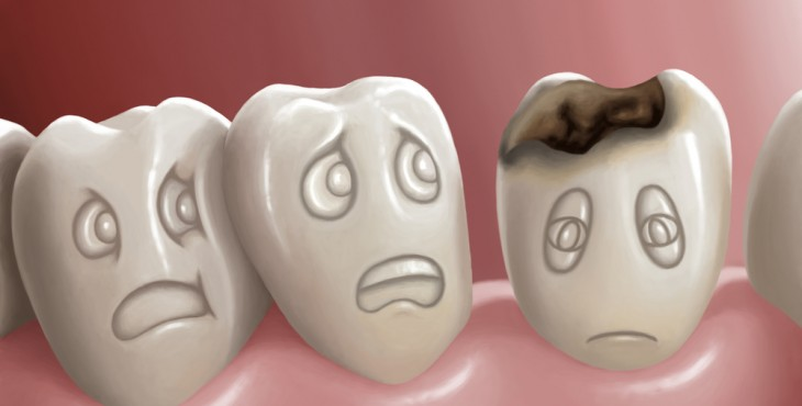 dental-cavity