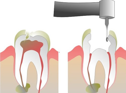 root_canal1