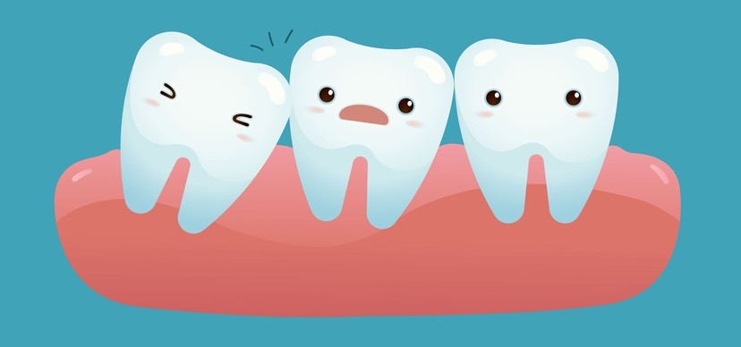 Do We Need Our Wisdom Teeth?