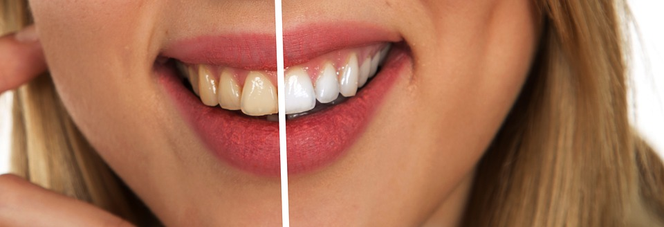 Does Laser Teeth Whitening Damage Teeth?