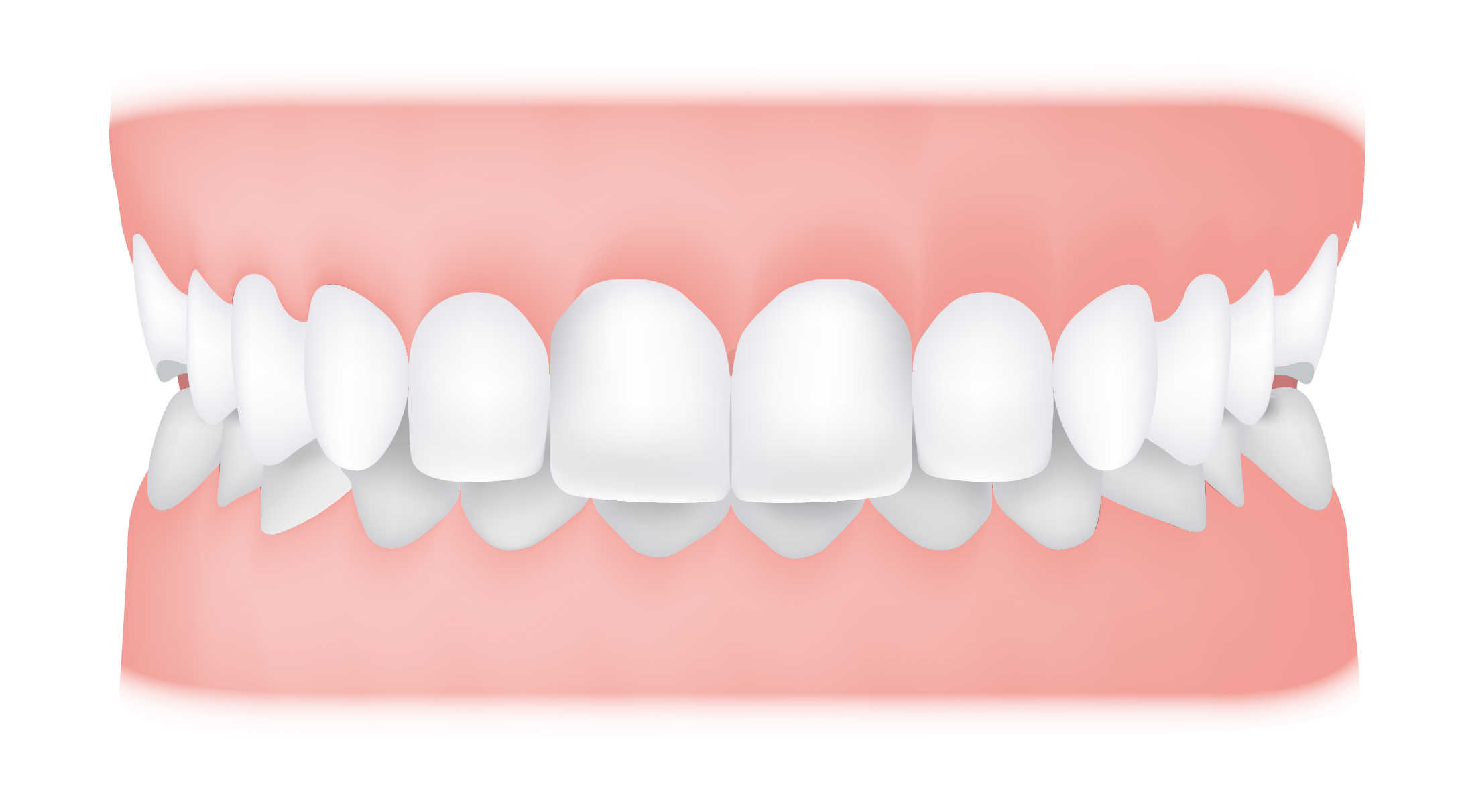 What Causes Gum Sensitivity, and What Can You Do About It?