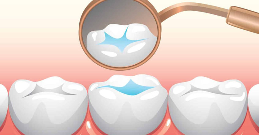 Are Dental Sealants Right for My Smile?