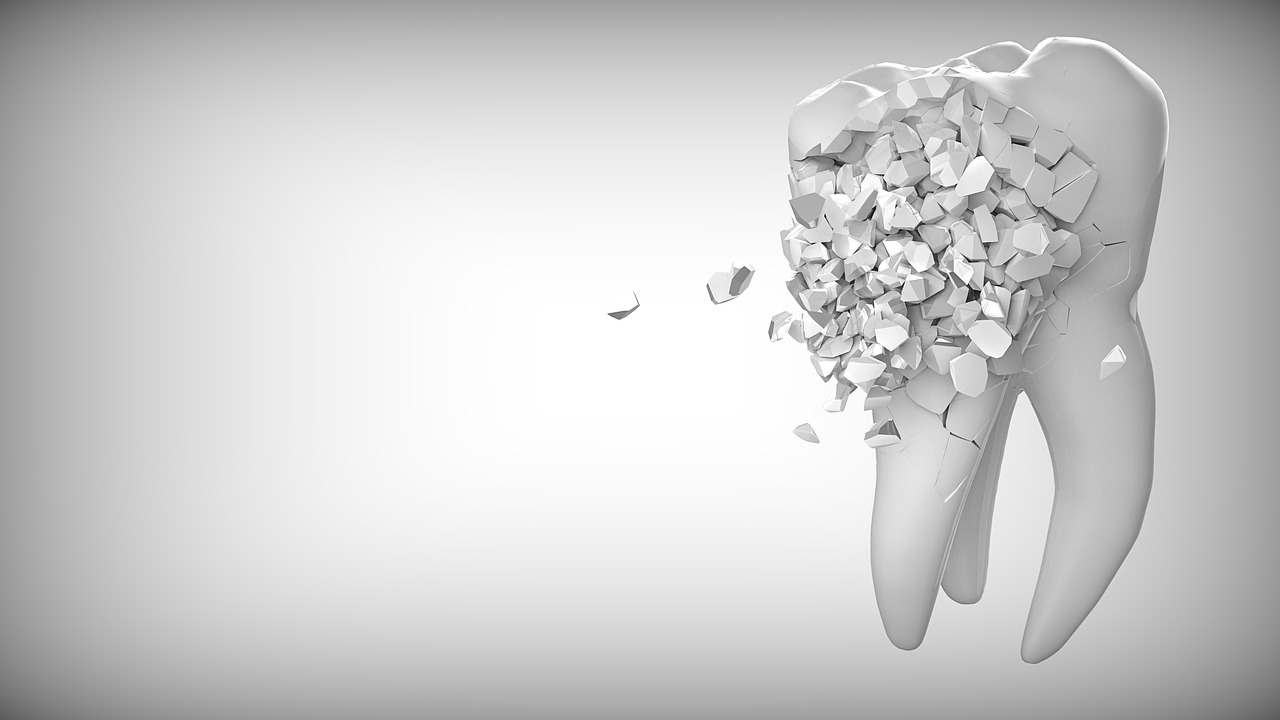 What Are the Stages of Tooth Decay?