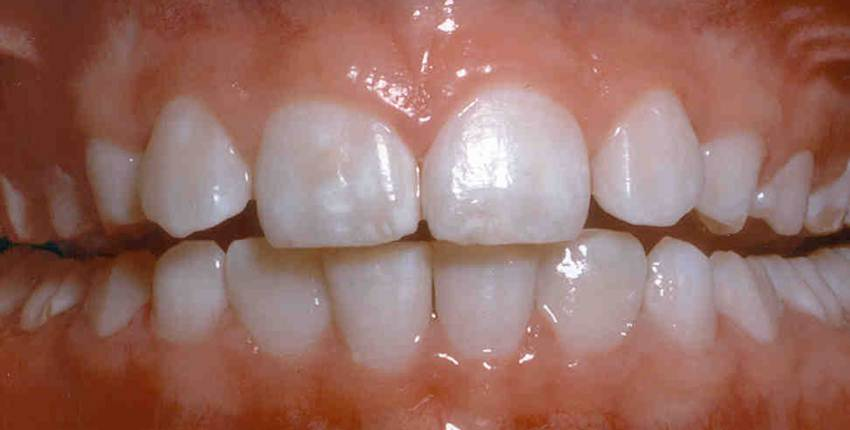 What Is Dental Fluorosis and How Is It Treated?