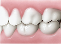Do You Have Visible Fracture Lines on Your Teeth? Here's What to Do