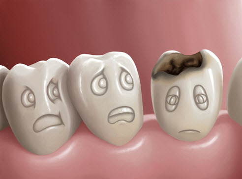 Can Cavities Form Under Dental Fillings?