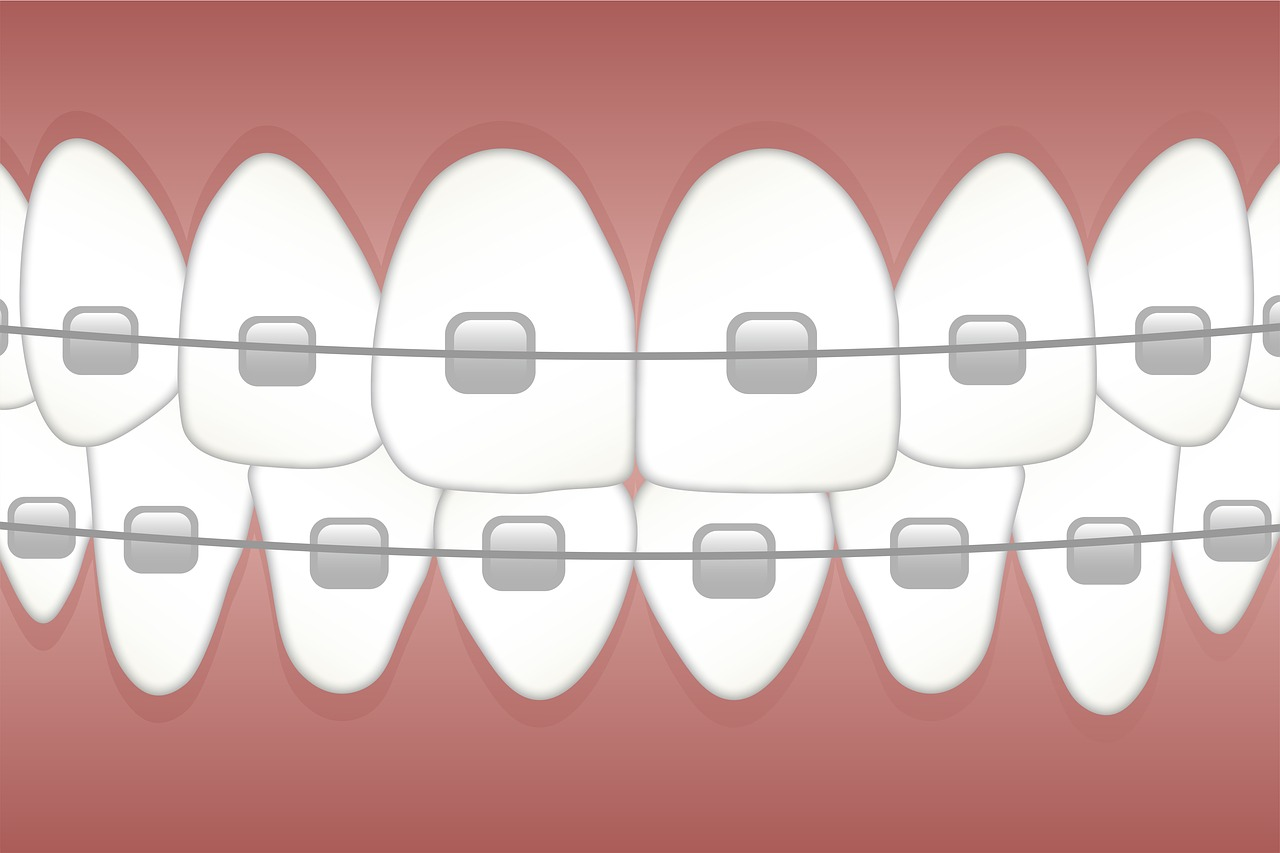 What Are the Benefits of Orthodontic Headgear?