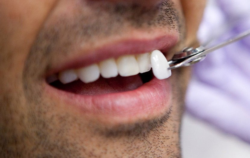 Are Dental Veneers the Best Option for Enhancing Your Smile?