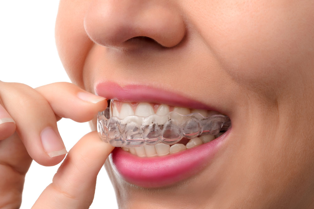 Can I Have Braces or Invisalign if I Have Dental Veneers?