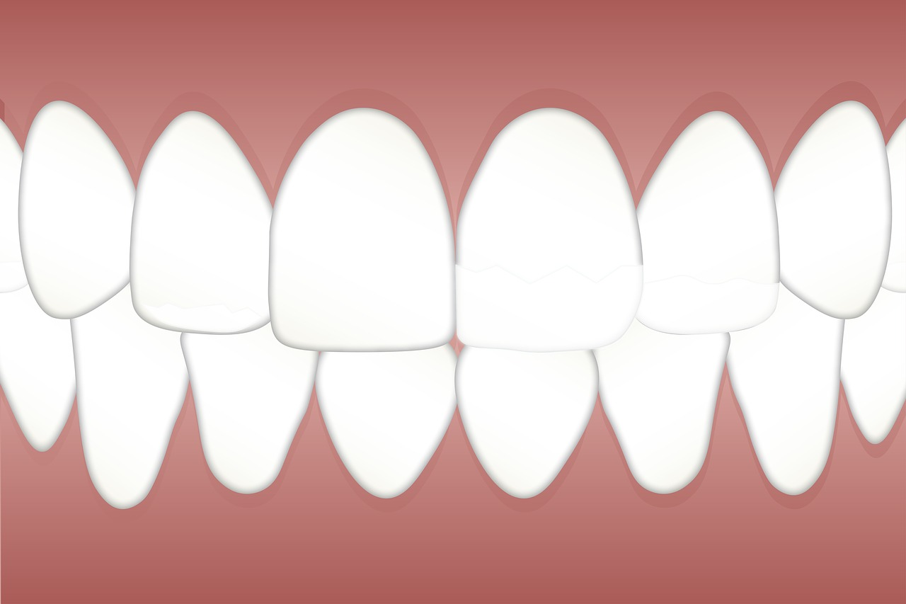 Can You Get Professional Teeth Whitening If You Have Dental Implants or Dentures?