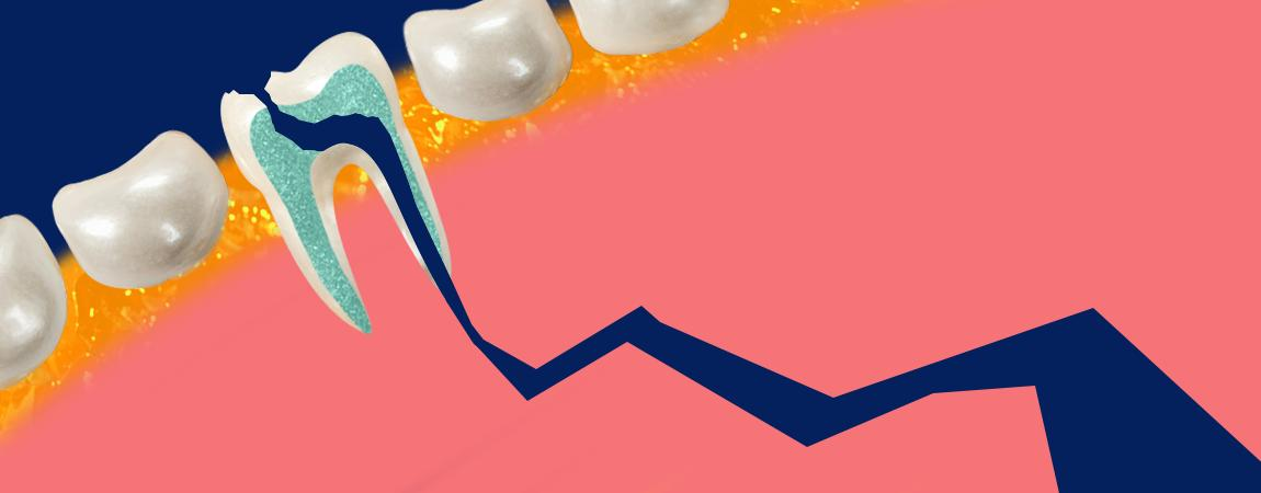 Top Reasons Your Tooth May Be Aching