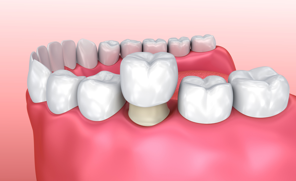 Are Same Day Dental Crowns Right for You?