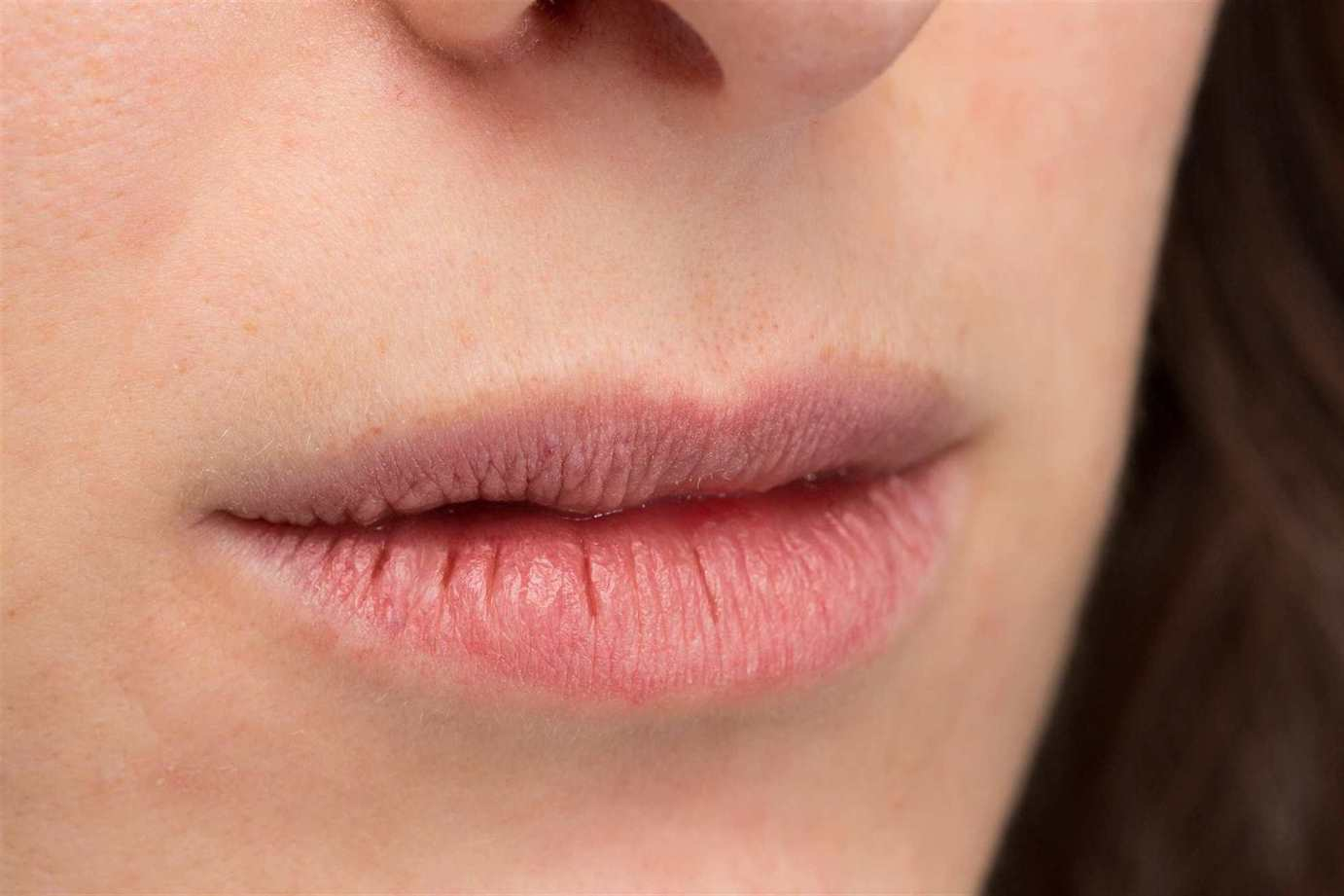 What Could Be Causing Your Dry Mouth?