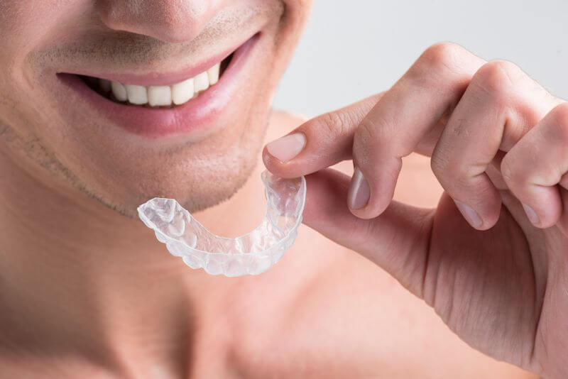 Five Fast Facts Regarding Invisalign Treatment