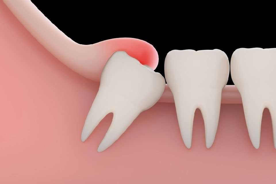 Does Everyone Need Their Wisdom Teeth Extracted?