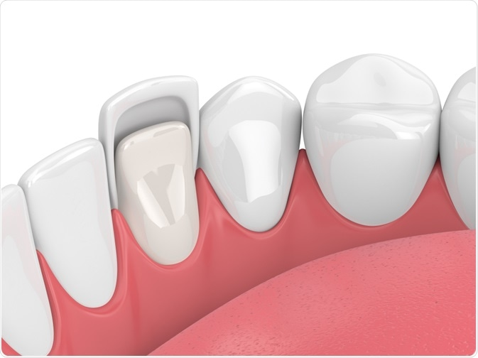 What Exactly Are Dental Veneers, and Are You a Good Candidate?