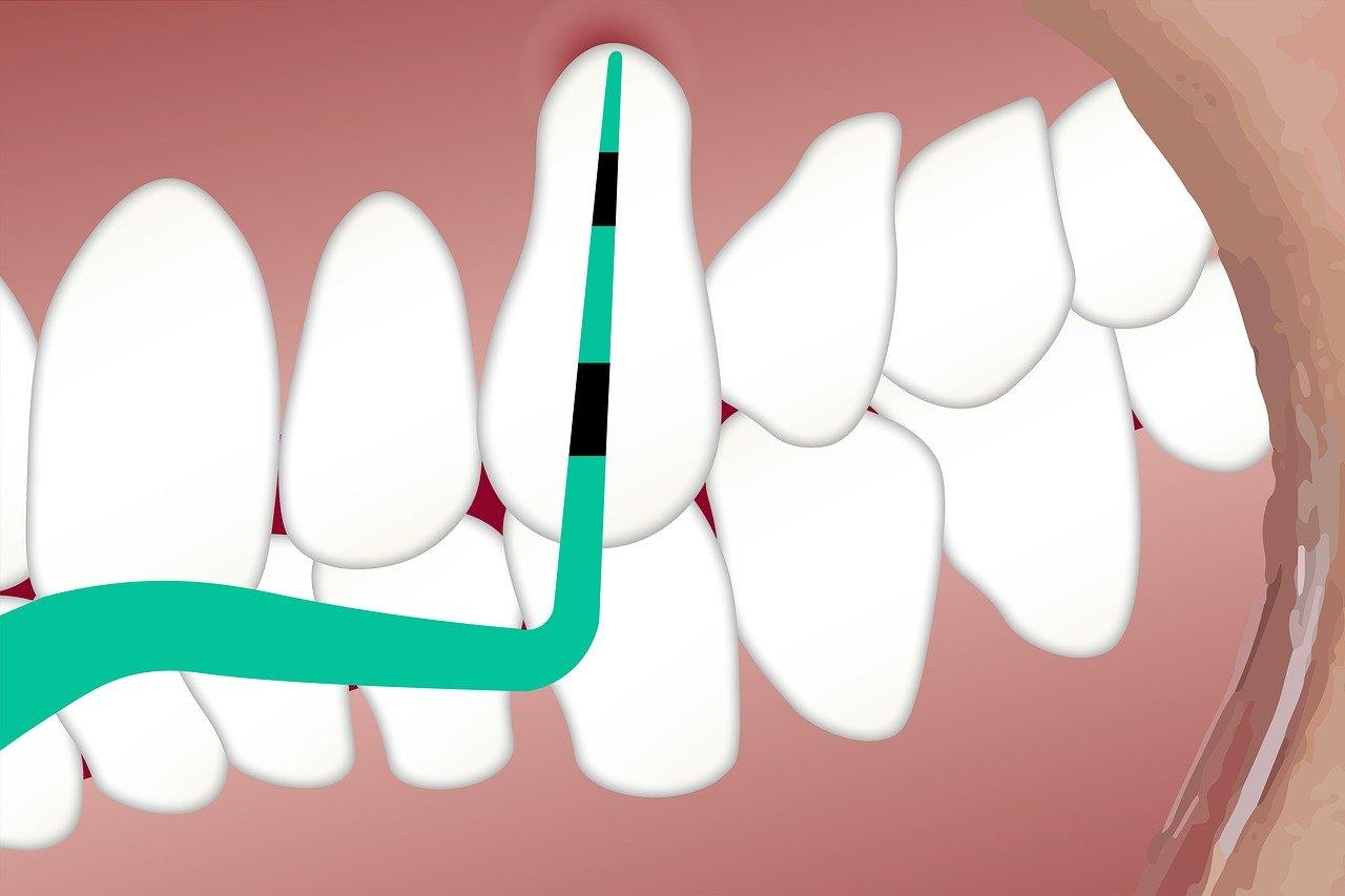 The High Risks of Ignoring Gum Disease