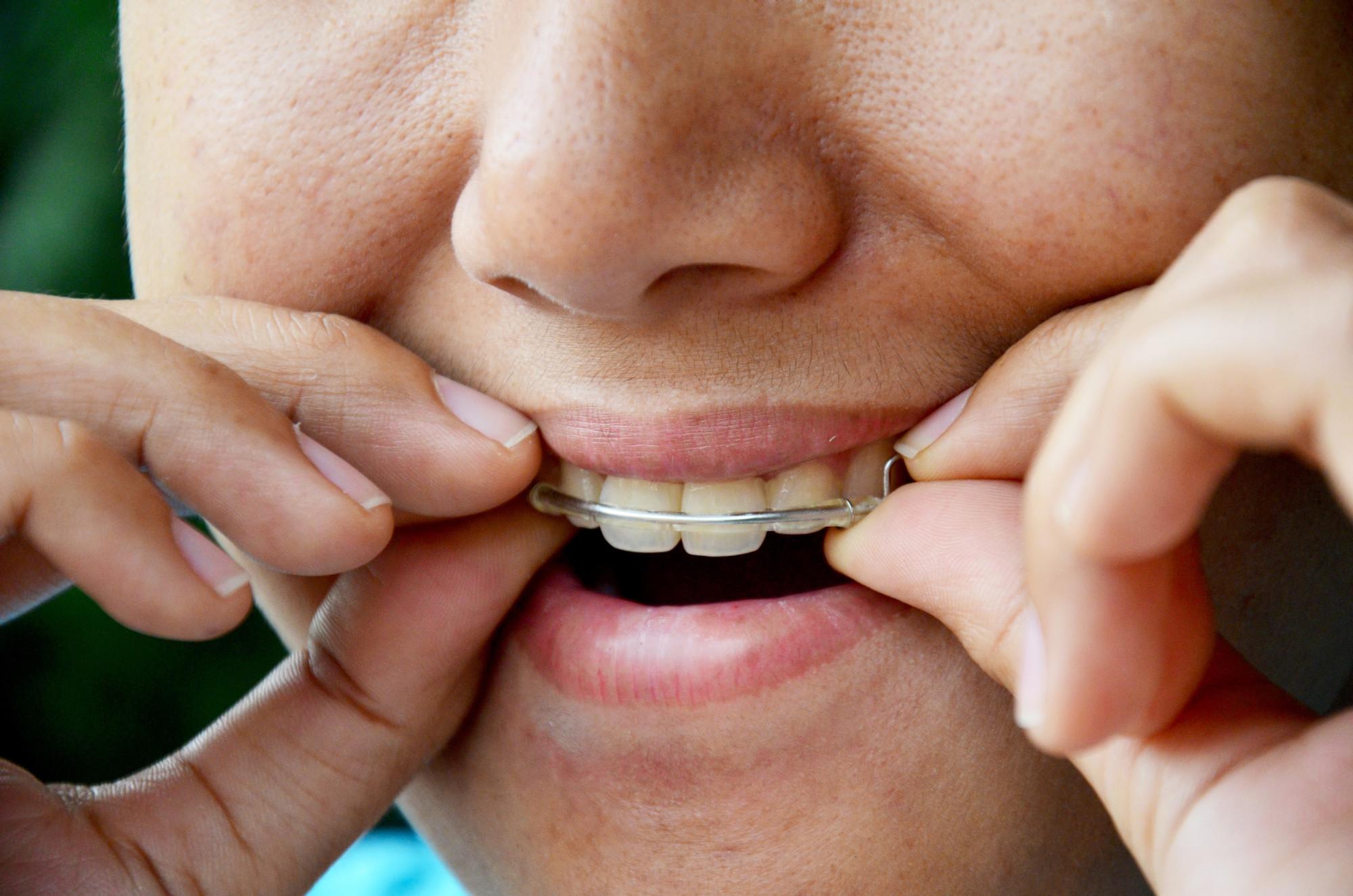 First Impression Orthodontics