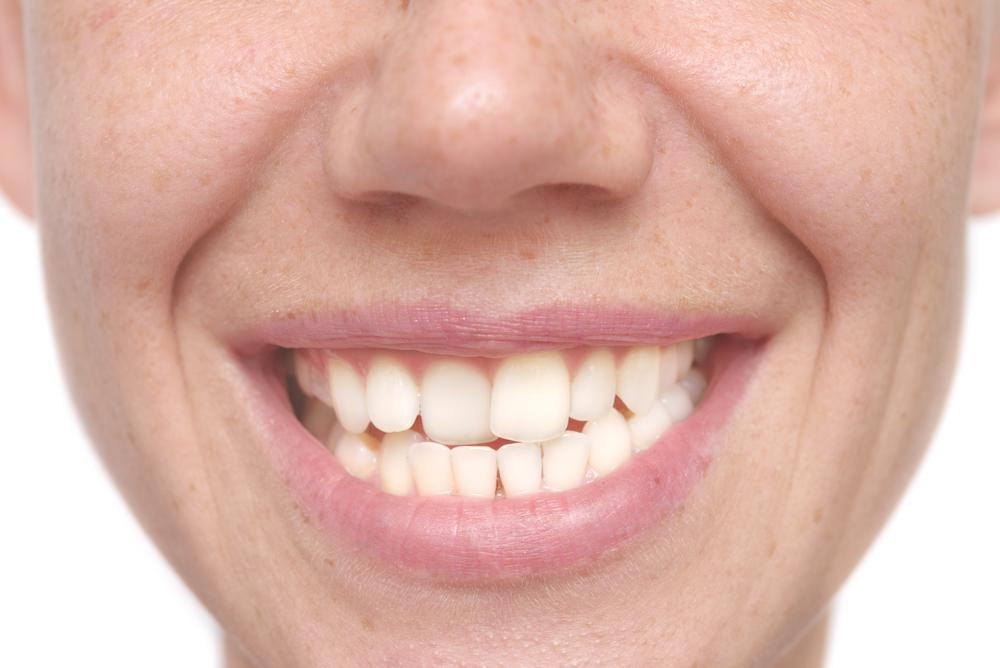 How Misaligned Teeth Affect Your Oral Health