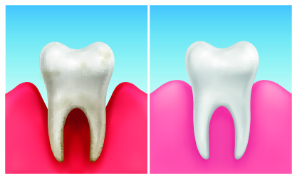 Gum Disease vs. Gingivitis: What's the Difference?