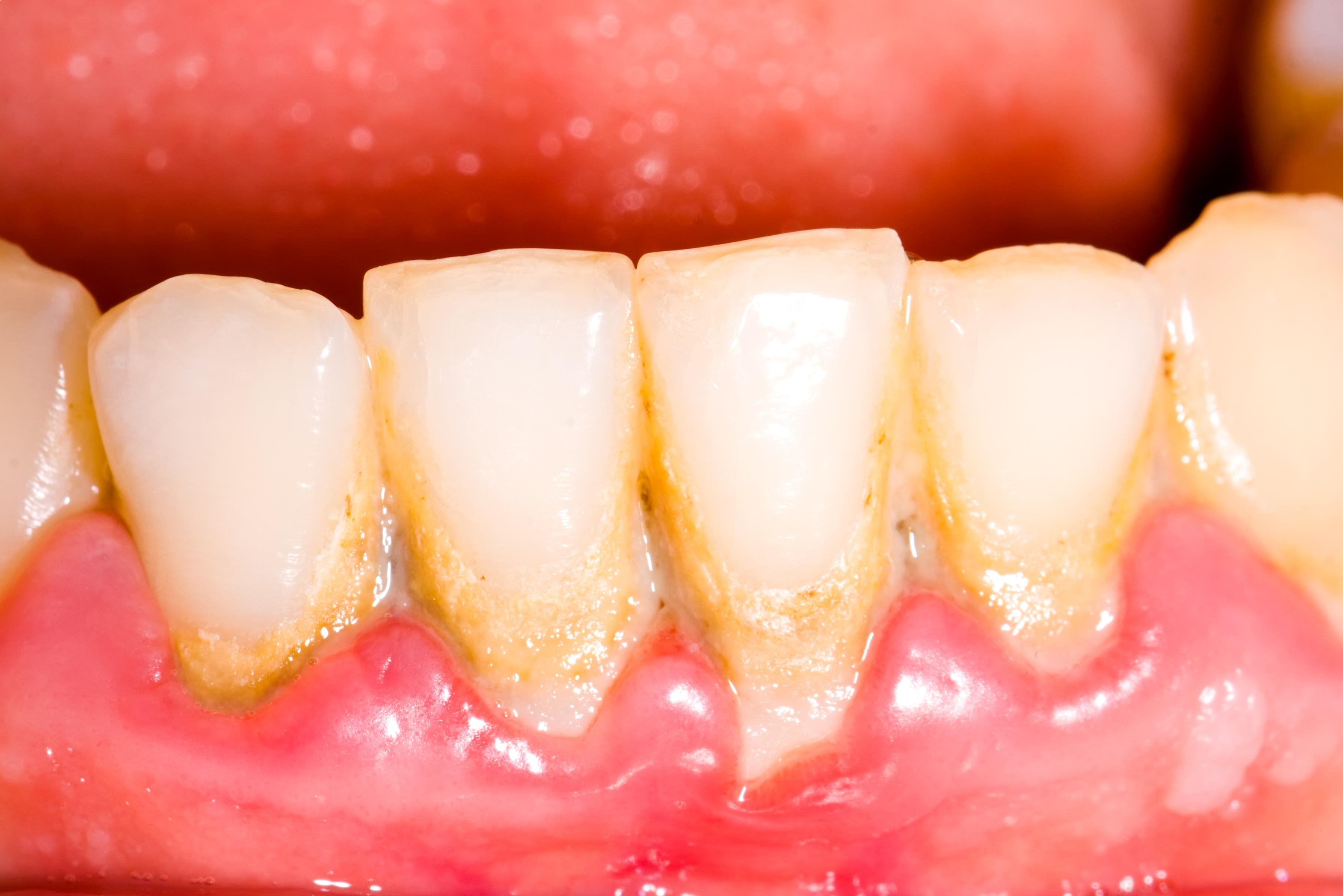 How Do Tartar and Plaque Harm Your Smile?