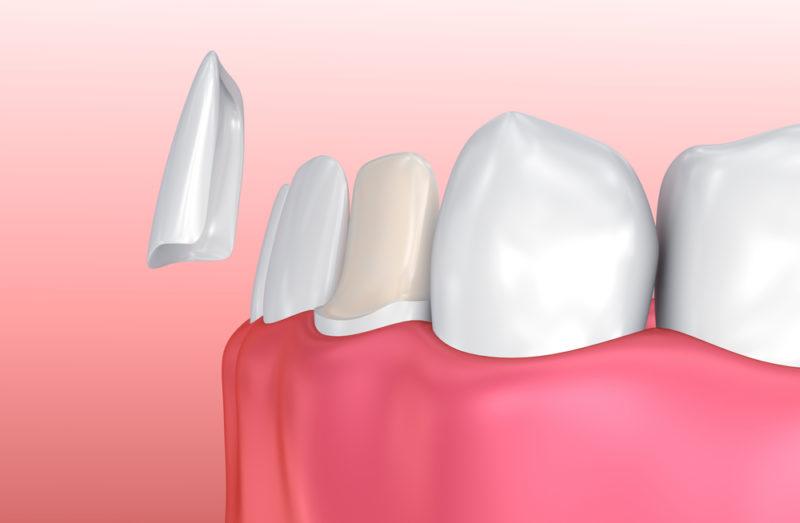 Do Dental Veneers Look Natural?