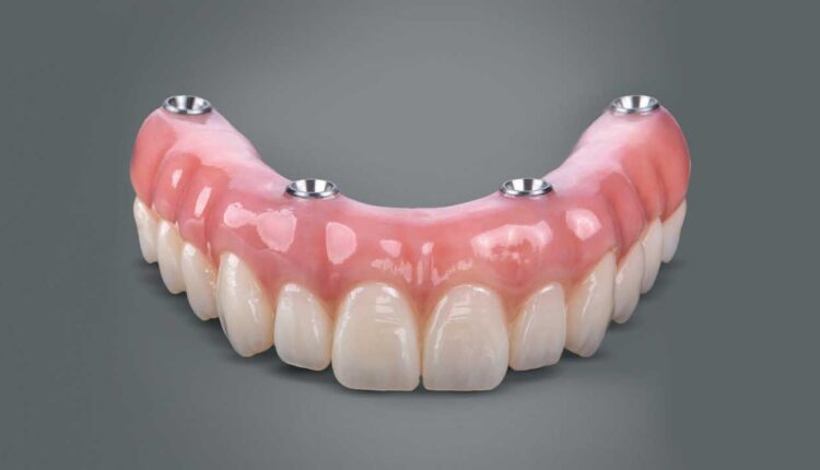 All-on-Four Dental Implants: The Denture Alternative