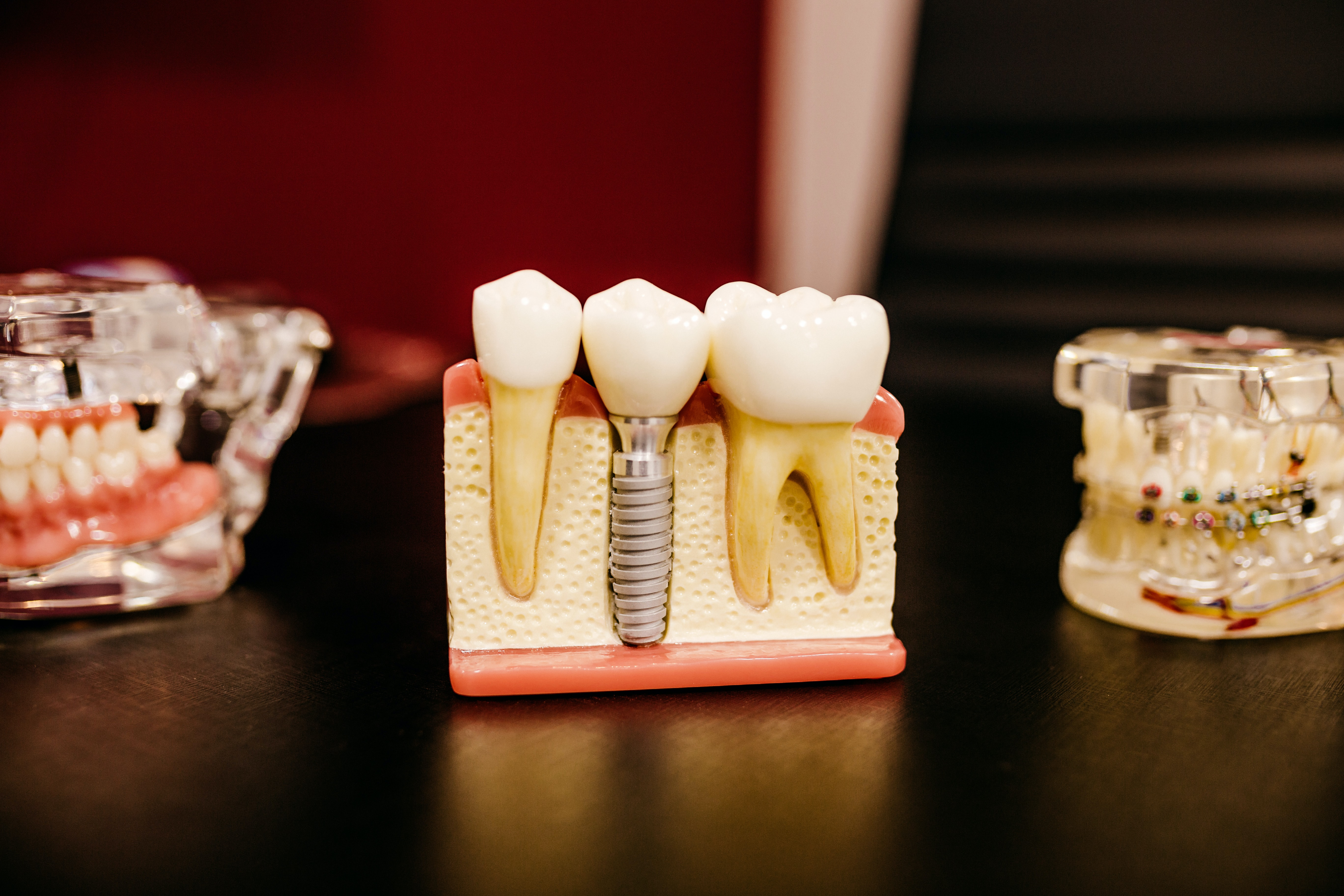 What Factors Might Contribute to Tooth Loss?