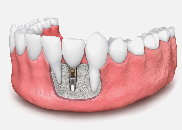 Bone Grafts to Support Your Dental Implants