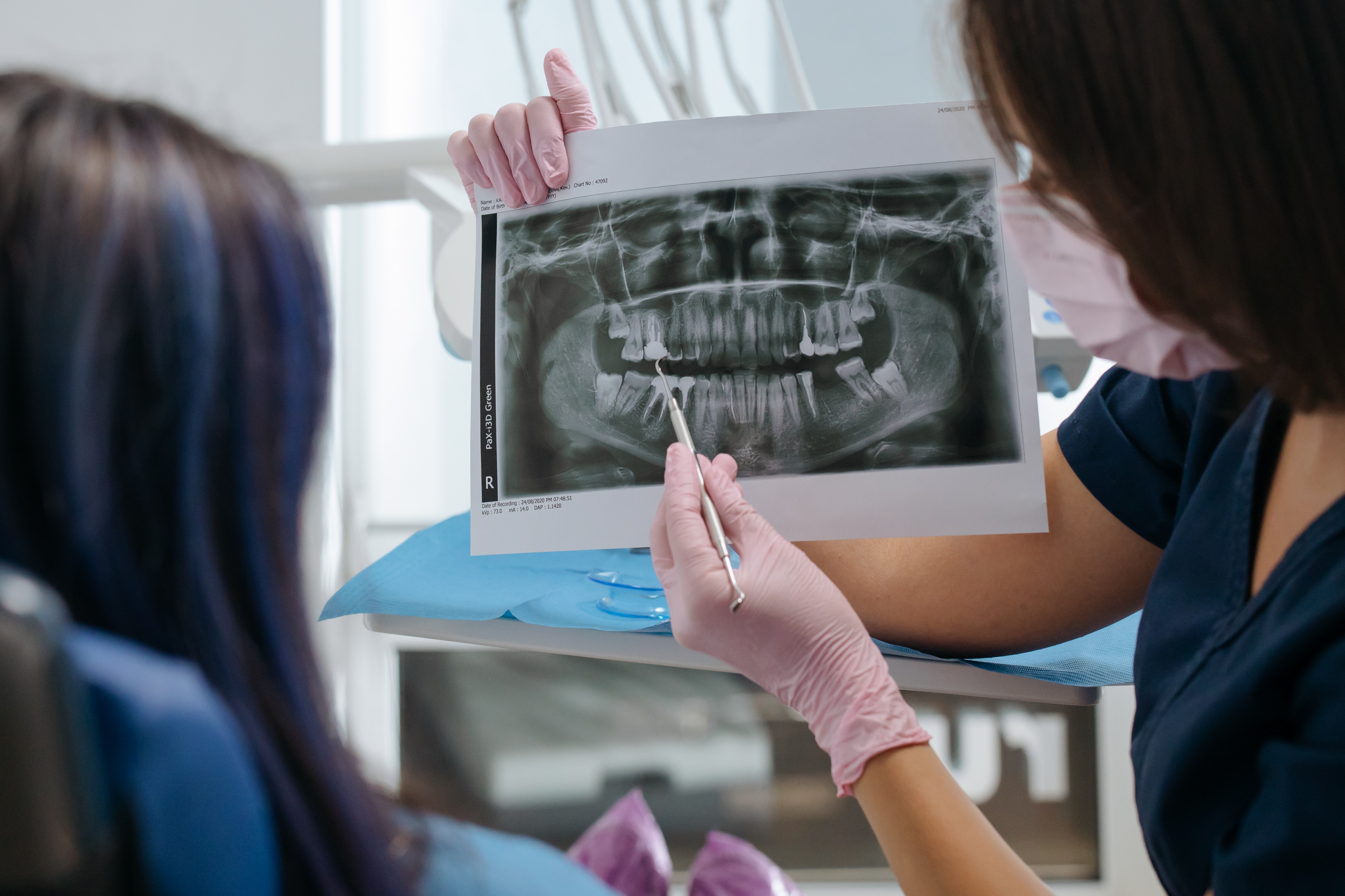 What Your Dentist Is Looking for When They Look at Your X-Rays