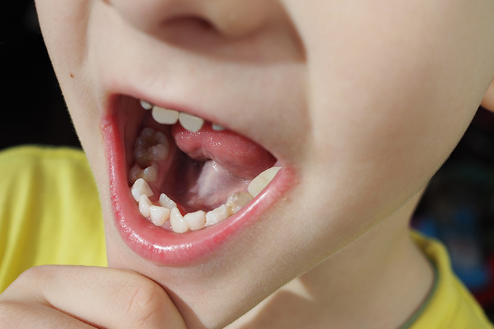 Hyperdontia: Fast Facts About Extra Teeth