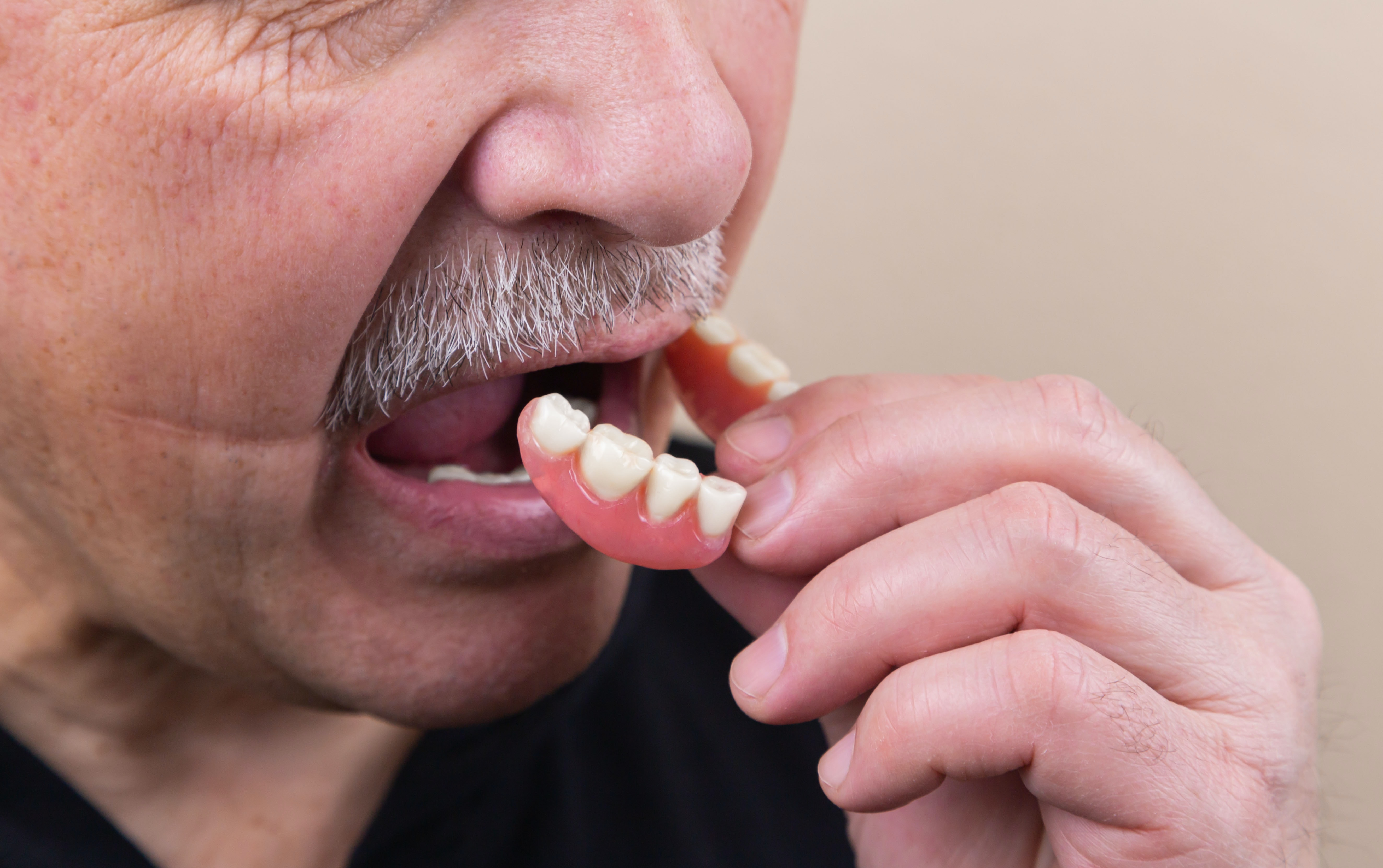 The Most Common Reasons for Tooth Loss in Adults